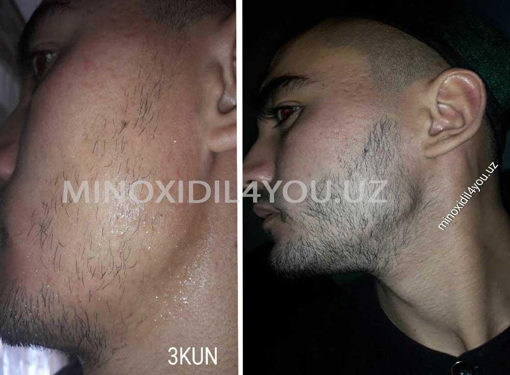 minoxidil rezultat